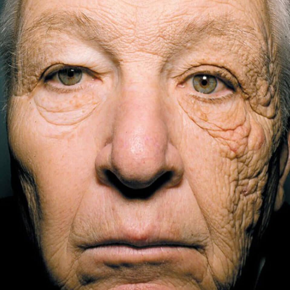 truck-driver-face-suppose-u-drive-sun-damage-to-skin